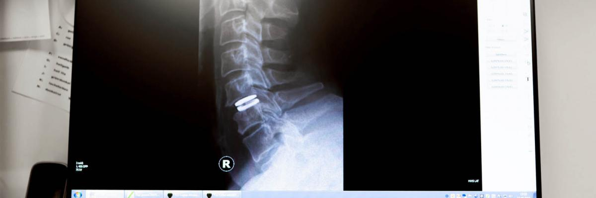 Orthopädie am Rhein - Bandscheibenprothese / Stabilisierung Halswirbelsäule