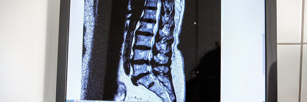 Orthopädie am Rhein - Spinalkanalstenose-OP mittels Dekompression und/oder Spacer (beides minimal-invasiv)
