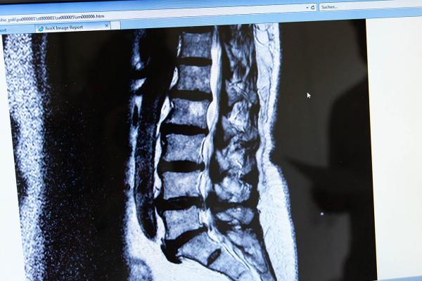 Mikrochirurgische Bandscheiben-Operation (minimal-invasiv)